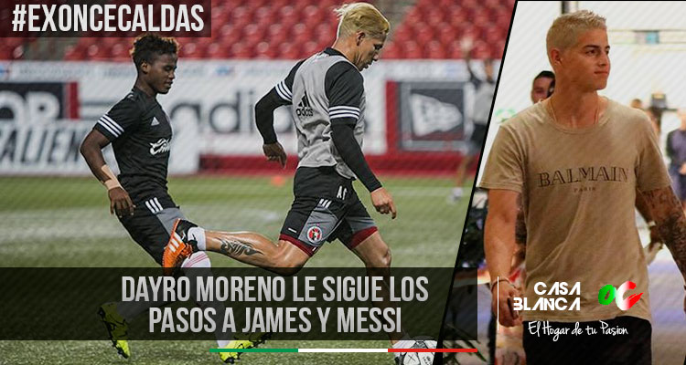dayro-moreno-nuevo-color-de-pelo-james-messi